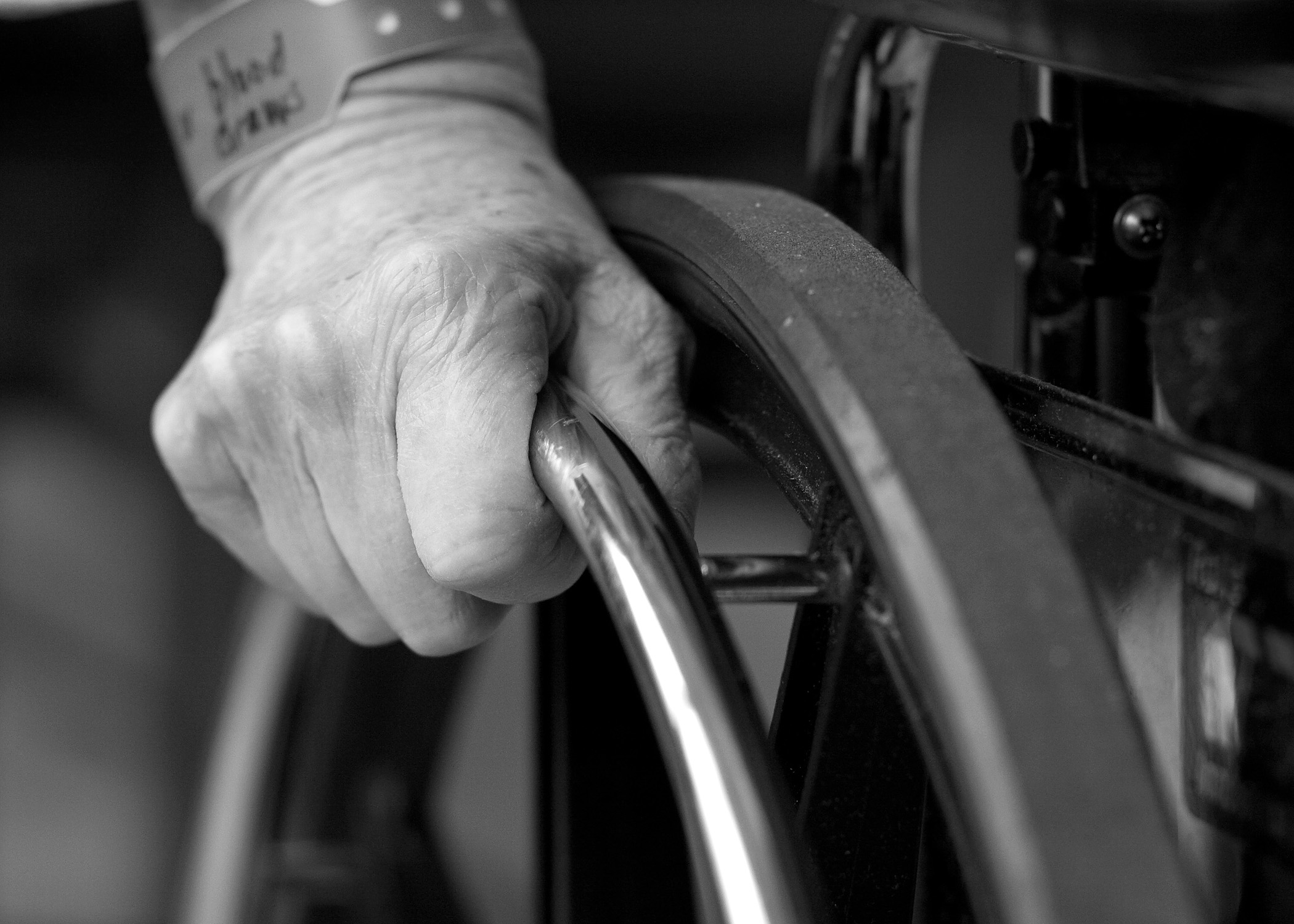 Alzheimer i altres demències: Els cossos de Lewy
